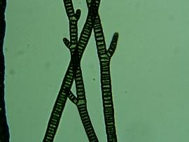 Cyanobacteria (Blue-green bacteria, blue-green algae)